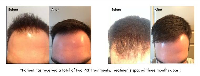 Hair rejuvination treatment success