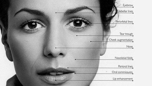 Derma Fillers for face