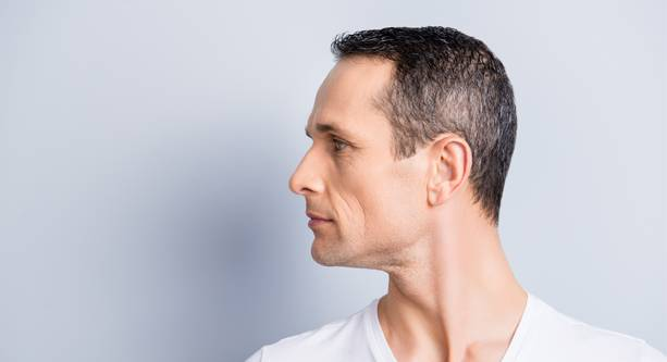 Male hair restoration