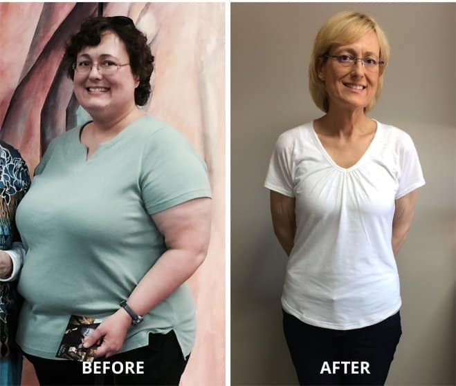 Before and after weight loss success story woman
